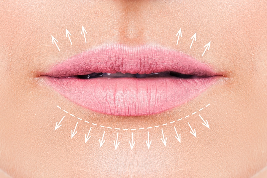 Important things you must know before getting lip fillers